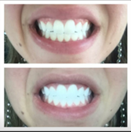Laser Teeth Whitening Revivify Medical Spa Contact Us Today